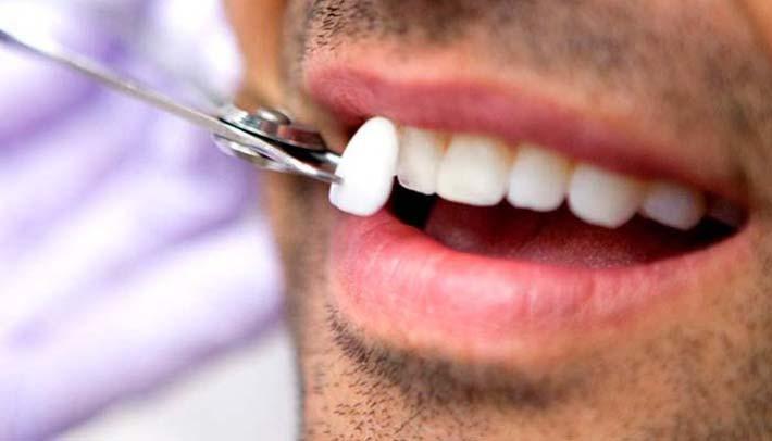 ¿Sabes qué son las carillas dentales? una pista, sonrisas de cine