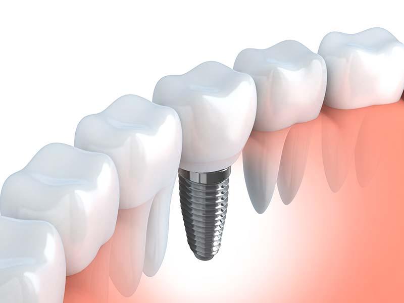Implantes dentales – ¿Qué debes saber?