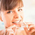 Las 10 cosas que debes saber sobre la ortodoncia Invisalign