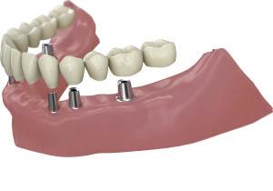Prótesis completas sobre implantes
