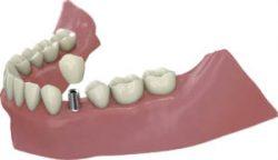 Prótesis unitaria sobre implante