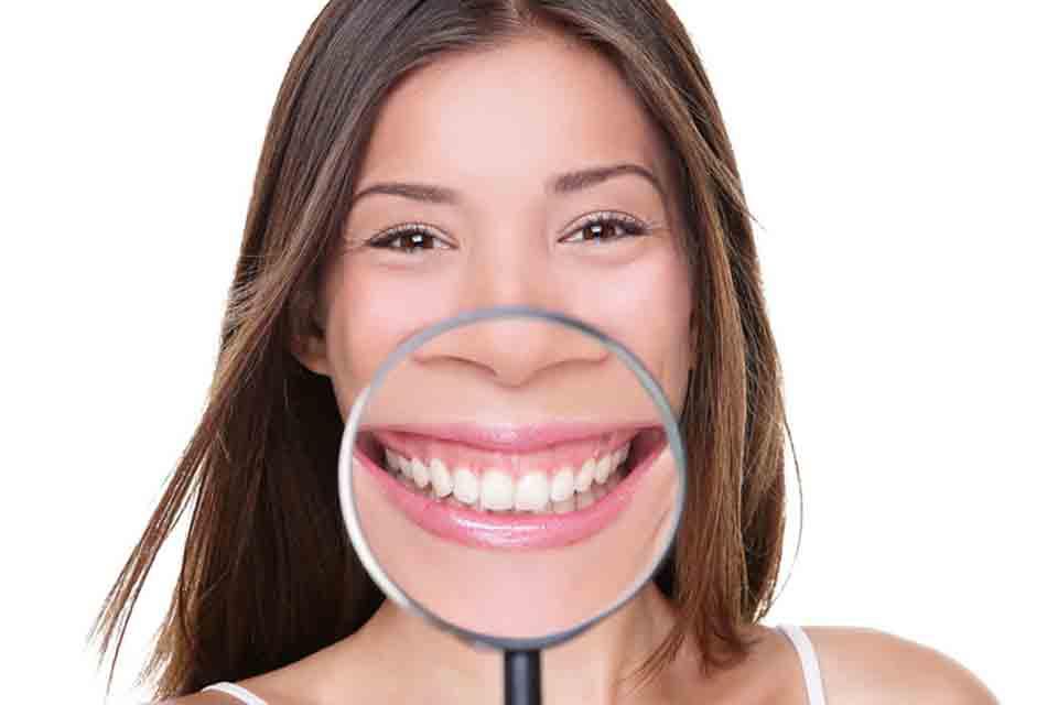 ¿En qué consiste un blanqueamiento dental?