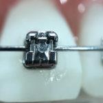 La ortodoncia infantil o interceptiva