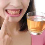 ¿Cómo puedes combatir los dientes amarillos?