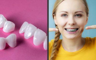 Ortodoncia o carillas dentales, descubre cuál es la mejor opción para ti
