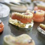 Tipos de prótesis dentales