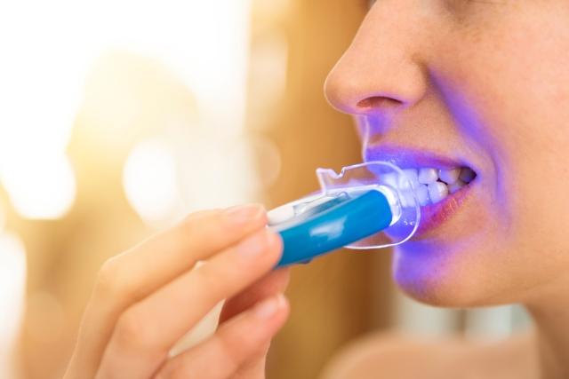 ¿Cuál es el mejor blanqueamiento dental?