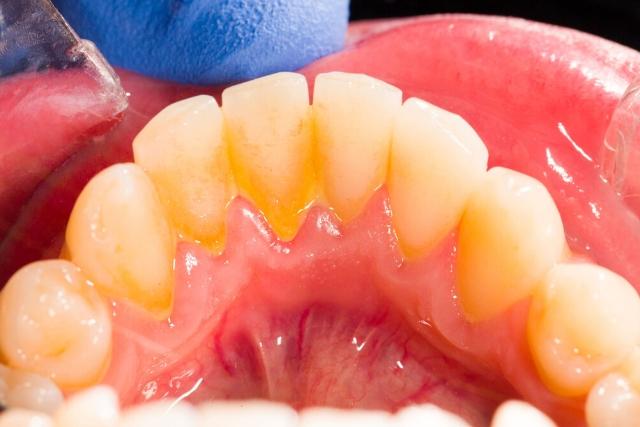 ¿Qué debes saber sobre la placa dental?