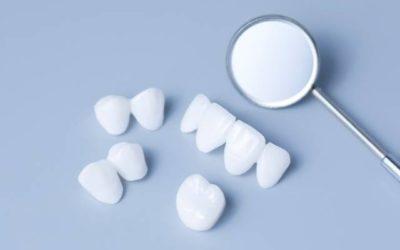 ¿Carillas dentales de porcelana o de composite?